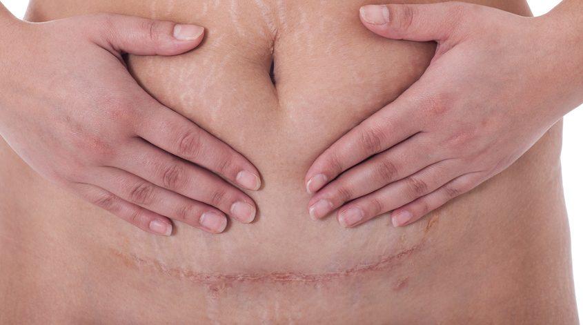 c-section scar massage